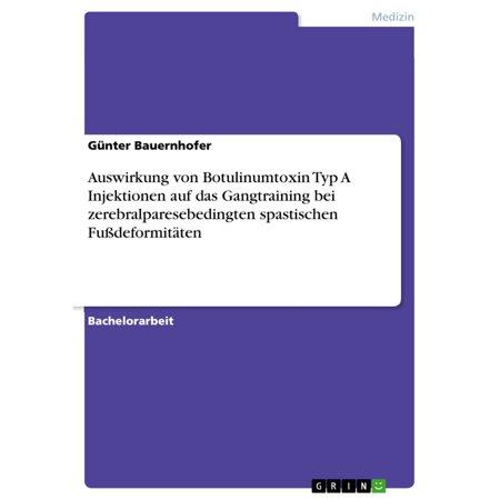 Auswirkung von Botulinumtoxin Typ A Injektionen auf das Gangtraining bei zerebralparesebedingten spastischen Fußdeformitäten - eBook (Typ Von Frames Für Brillen)