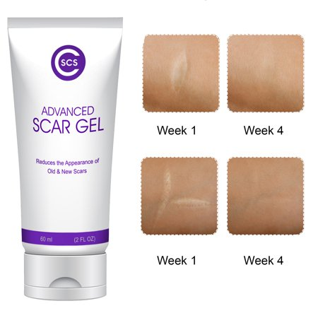 CSCS Most Effective Scar Remover Cream with Hydrolyzed Collagen & Vitamin E - Heals Old & New Scars from Cuts, Acne, Stretch Marks, Burns & Post Surgeries Scars - Fast Results, for All Skin Types 2