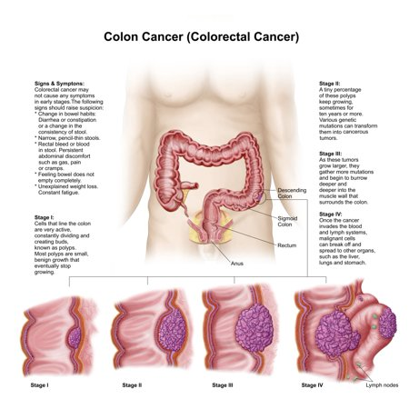 Medical Illustration Depicting The Different Stages Of Colon Cancer Canvas Art   Stocktrek Images  29 X 27