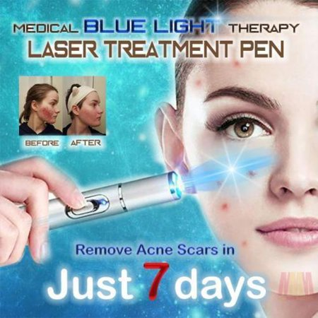 Handheld Picosecond Laser Pen Tattoo Scar Freckle Removal Machine Skin Beauty Device, Tattoo Removal Laser Pen, Spot Removal Laser Pen