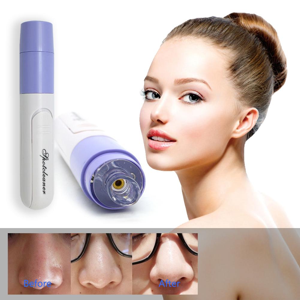 Hot Portable Electronic Skin Facial Pore Cleanser Cleaner Blackhead Remover Renew 7 - Laser Resurfacing Serum 0.5oz