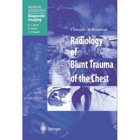 Radiology Of Blunt Trauma Of The Chest