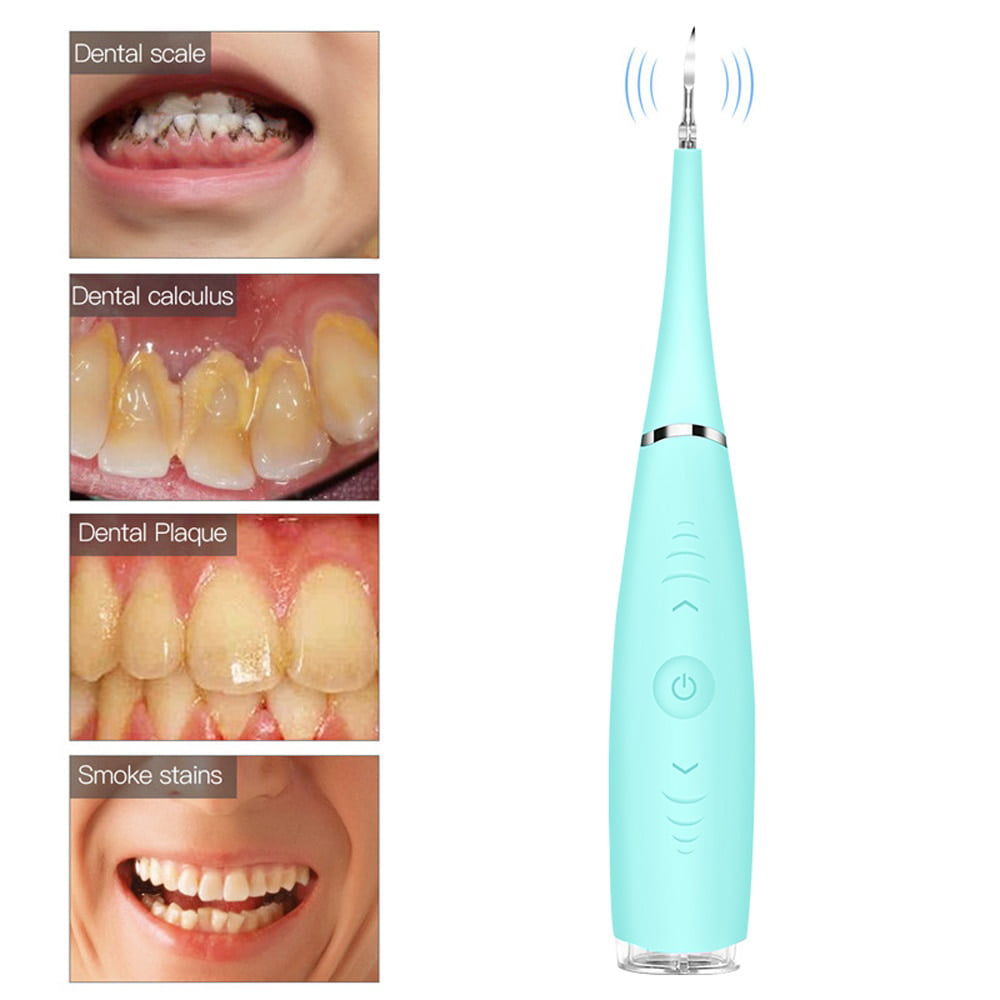 Electric Dental Calculus Remover Household Dental Teeth Stain Eraser Usb Charging Scraper Plaque Tartar Remover Sonic Dental Calculus Remover Water Flosser For Whitening Teeth Polishing Walmart Com Walmart Com