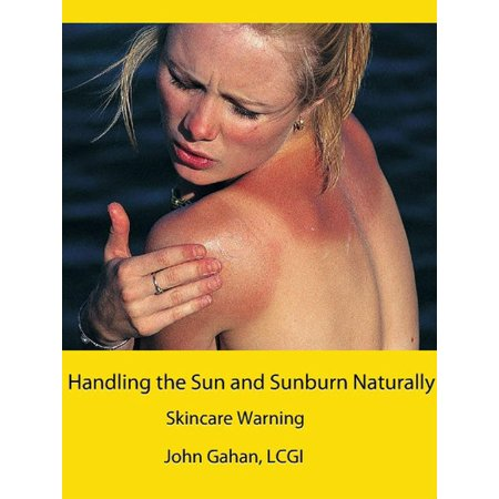 Handling the Sun and Sunburn Naturally: Skincare Warning - eBook