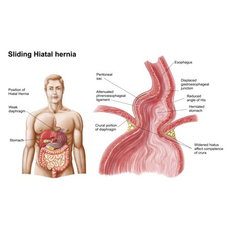 Medical ilustration of a hiatal hernia in the upper part of the stomach into the thorax Poster