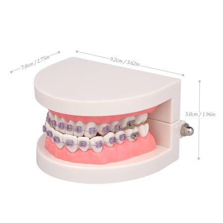 Modèle dentaire de mallocclusion orthodontique avec des supports Modèle de dents de tube buccal Archwire pour la communication patiente Enseignement des adultes - image 6 of 6