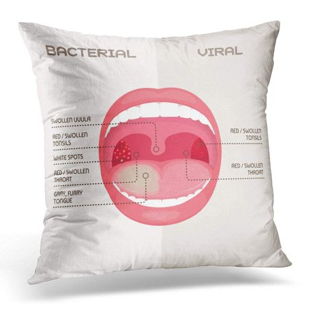 CMFUN Bacteria Anatomy of Throat Bacterial and Viral Infection Tonsils Inflammation Angina Disease Pillow Case Cushion Cover 20x20