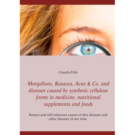 Morgellons, Rosacea, Acne & Co. and Diseases caused by synthetic cellulose forms in medicine, nutritional supplements and foods - - Acne Medicine