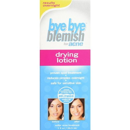 Bye Bye Blemish Drying Lotion For Acne, 1 Oz