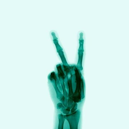 X-Ray of Hand Doing Peace Sign Print Wall - Hand Print Art