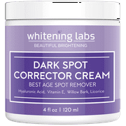 Best Body Lotion To Fade Age Spots - Dark Spot Corrector Best Dark Skin Age Spot Review
