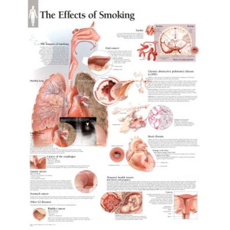 Effects of Smoking Educational Chart Poster -