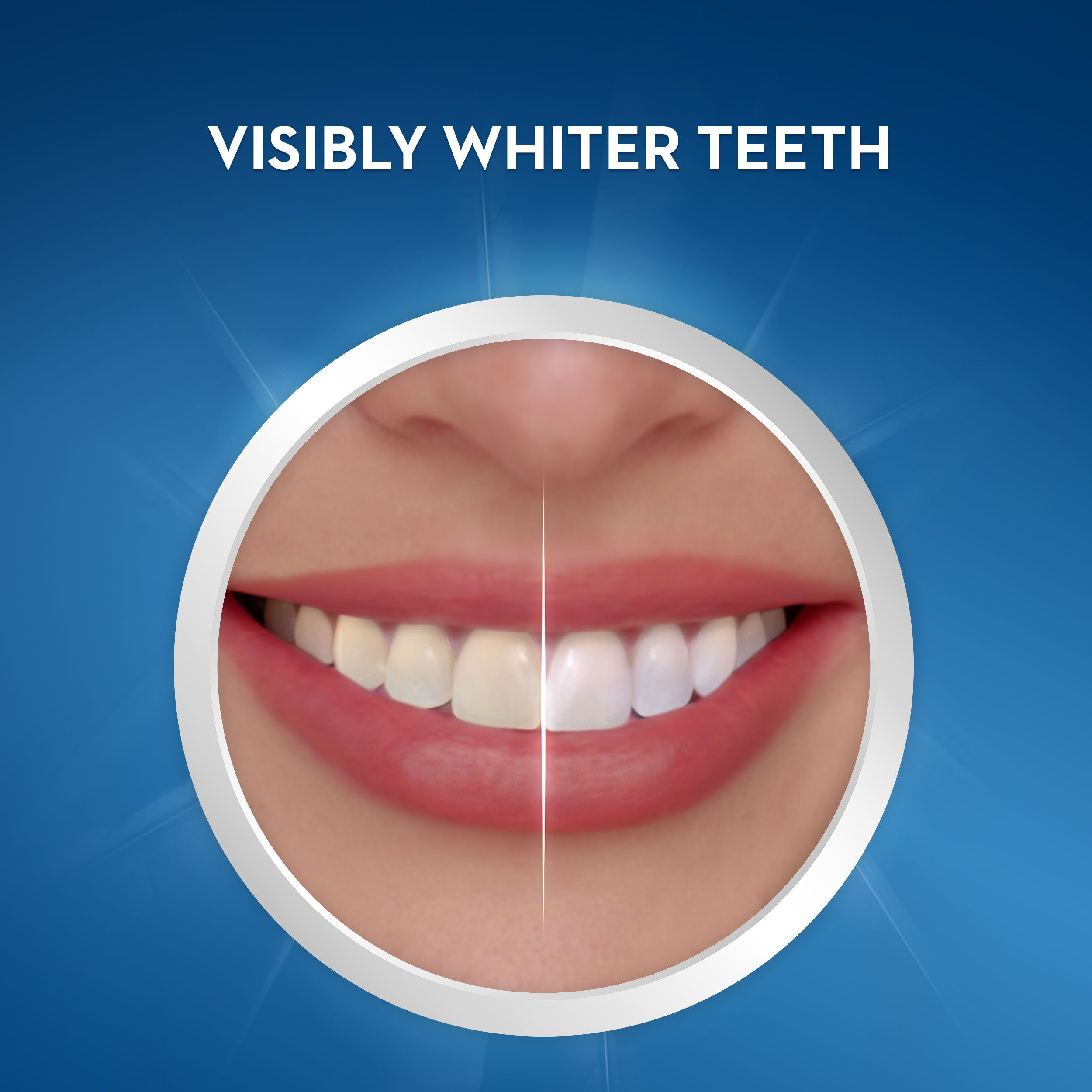 Crest 3d Whitestrips Noticeably White Teeth Whitening Kit 10