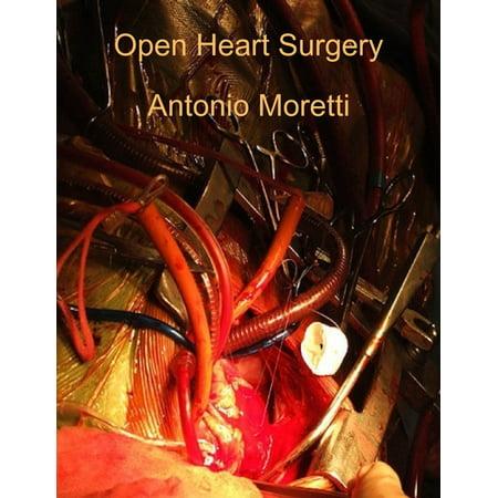 Open Heart Surgery - eBook