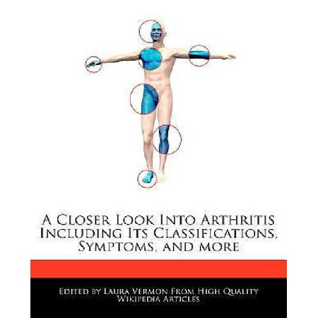 A Closer Look Into Arthritis Including Its Classifications  Symptoms  And More