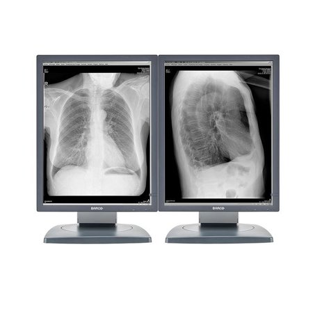Pair (x2) Barco® Coronis MDCG-2121 2MP Grayscale Medical Diagnostic Radiology Monitors (K9601659)