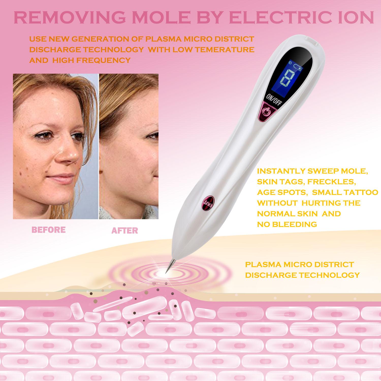 removeit pro® skin tag/mole remover
