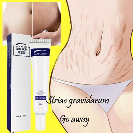 Removal Acne Scar Stretch Marks Cream Fat Scar Striae Gravidarum (At Home Laser Treatment For Stretch Marks)