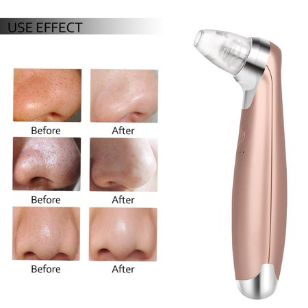 Hilitand LED Pore Cleaner 3 Colors Skin Care Cleaner Electric Blackhead Suction Removal LED Light Acne Pore Cleaner Skin Care