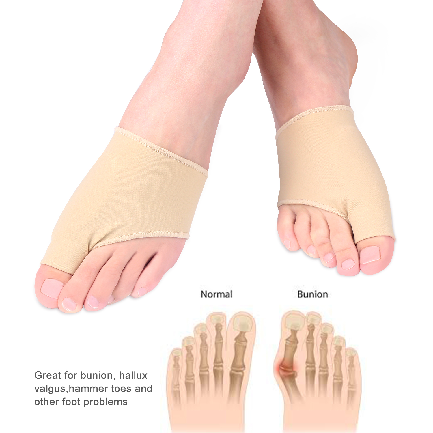 Yosoo 1 Pair Bunion Corrector Silicone Bunion Pads Foot Guard Relief Kit Treat Pain for Hallux Valgus Protector Sleeves