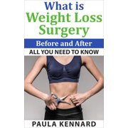 What Is Weight Loss Surgery: All You Need To Know Before And After - eBook