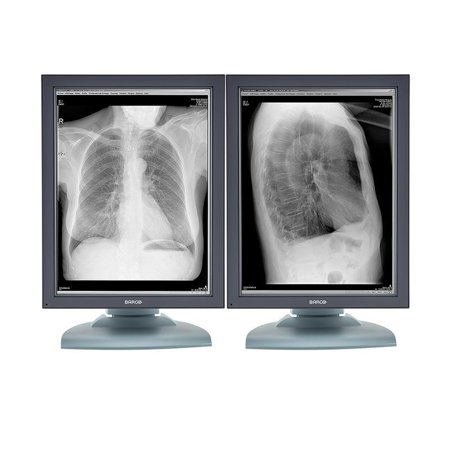Pair (x2) Barco® Nio MDNG-2121 2MP Grayscale Medical Diagnostic Radiology Monitor (K9601651)