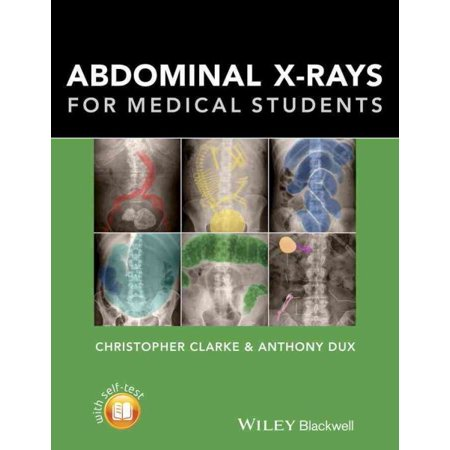 Abdominal X Rays For Medical Students