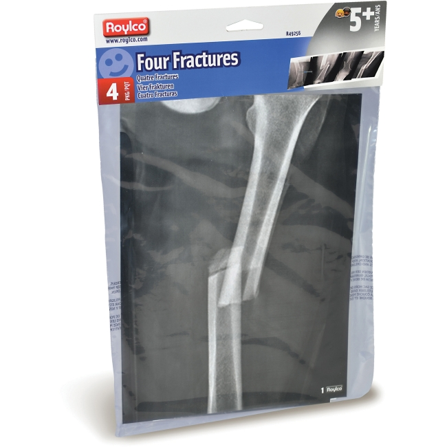 Roylco Four Fractures X-ray Sheets (r49256)