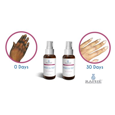 Pre-Neutralized Dark Hands and Feet Treatment Solution: Hands N Feet Gell Corrector For Hydroquinone Damaged Digits. 16oz ()