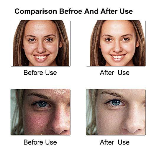 la imagenes cleanser facial de expresion