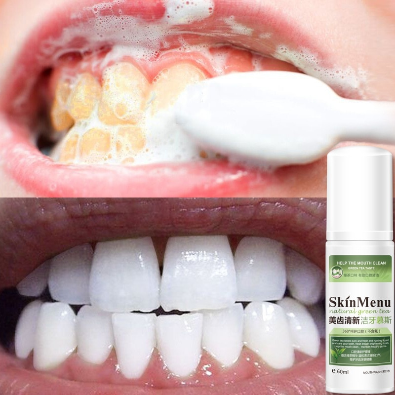 Teeth Cleaning Mousse Foam Toothpaste Remove Tooth Stains Plaque Cleaning Whitening Teeth Oral Hygiene Walmart Com Walmart Com