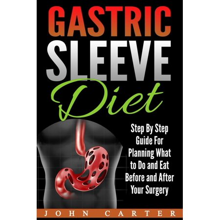 Gastric Sleeve Diet: Step By Step Guide For Planning What to Do and Eat Before and After Your Surgery -