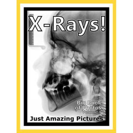 Just X-Ray Photos! Big Book of Photographs & Pictures of X-Rays, Medical Xray, Hospital Xrays, Vol. 1 - (X-ray Rubber)