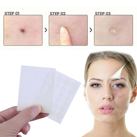 SUPERHOMUSE 24Pcs Acne Pimple Patch Little Stickers Patch Acne Treatment...
