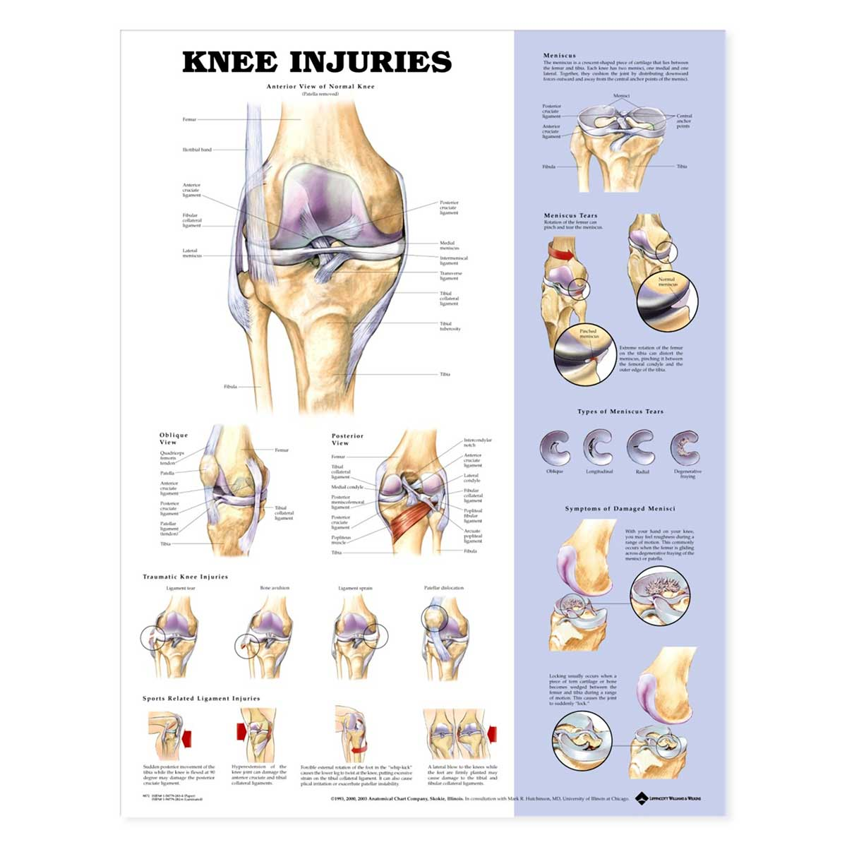 The Knee Injuries Anatomical Charts-Laminated
