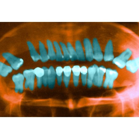 - Panoramic Dental X-Ray Stretched Canvas - Science Source (36 x 24)