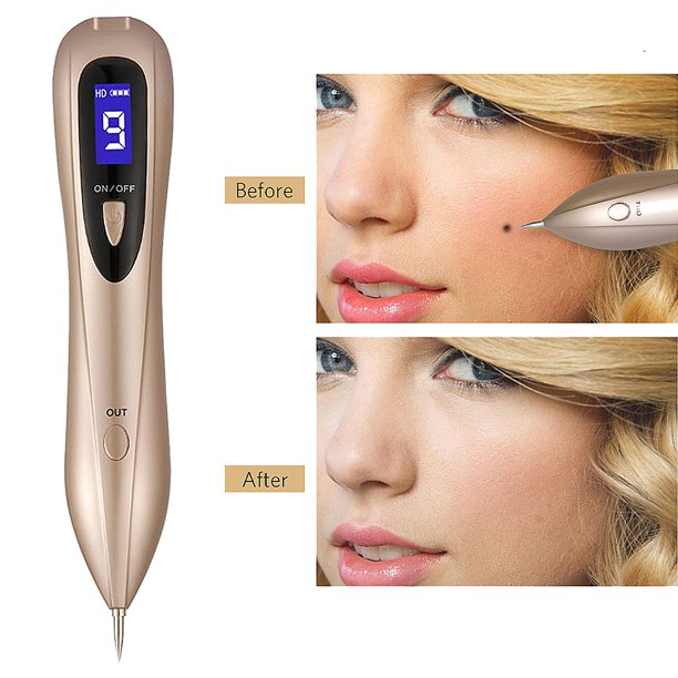Mole Remover Pen Skin Tag Portable Rechargeable Mole Removal Pen Kit For Face Body Self Black Raised Mole Skin Tag Wart Dark Sun Age Spot Blemish Tattoo Security Removal Tool