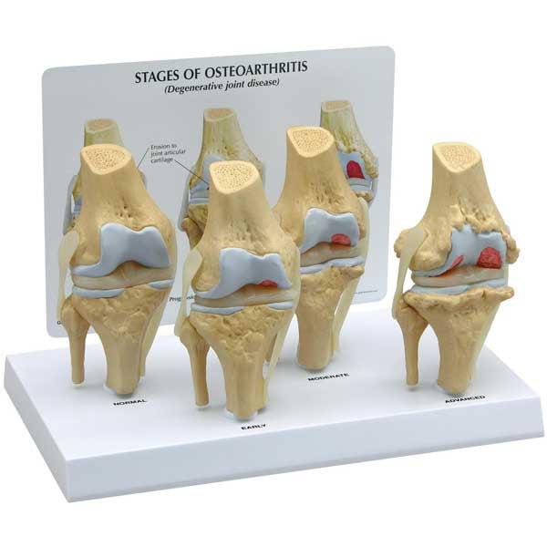 4-Stage Anatomical Human Osteoarthritis Knee Model