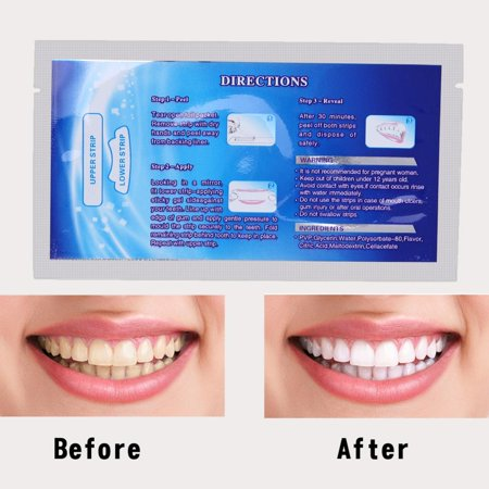 28Pcs Teeth Whitening Strips Professional Teeth Bleaching Gel Strip Effective Dental Care Kit Set,Effects Whitestrips Dental Teeth Whitening (Best Teeth Whitening Set)