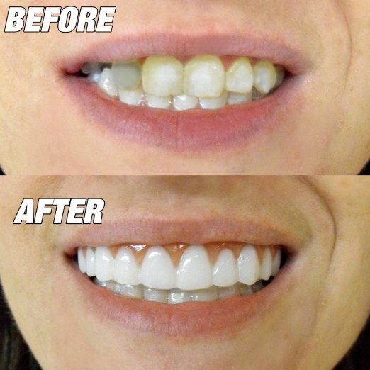 SMALL TOP WITH BOTTOM SET OF INSTANT SMILE PERFECT TEETH HARD CARRING CASE