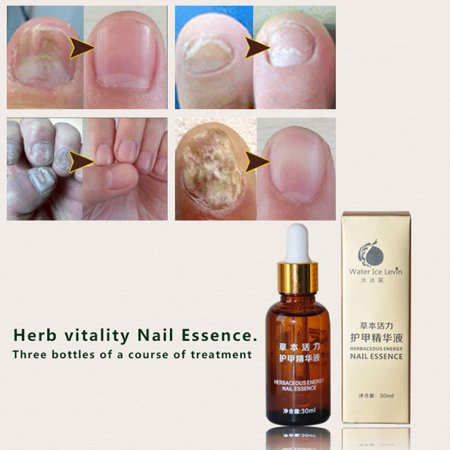 Health Skin Care Herbal Nail Repair Treatment Essential Oil Onychomycosis