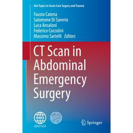 CT Scan in Abdominal Emergency Surgery - eBook