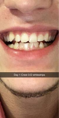 Crest 3d Whitestrips Brilliance White Teeth Whitening Kit 32