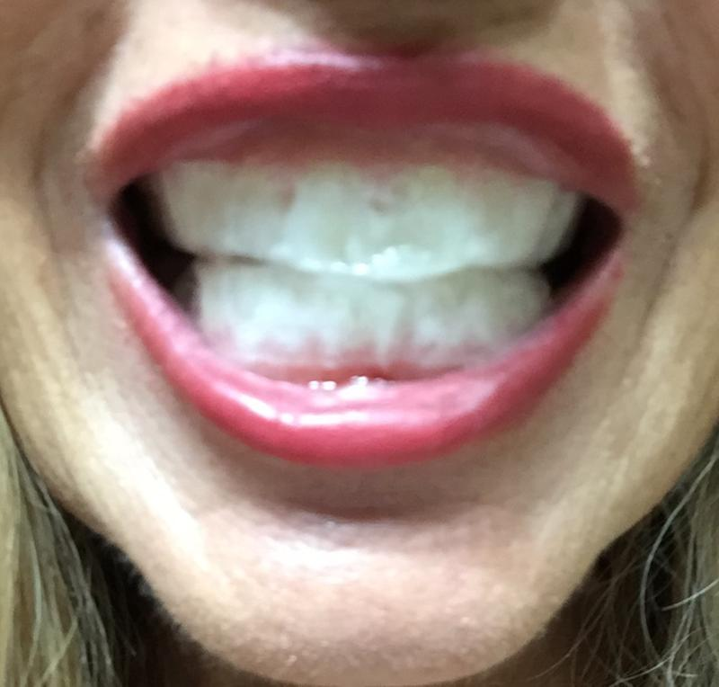 Crest 3d Whitestrips Vivid White Teeth Whitening Kit 24 Strips Walmart Com Walmart Com