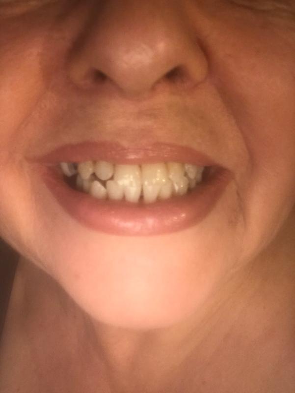 Gleem One Week Professional Teeth Whitening Light Kit 1 Led Light