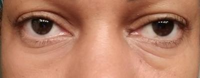 Cetaphil Hydrating Eye Gel Cream Walmart Com Walmart Com