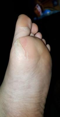 Peeling Callus Removing Booties