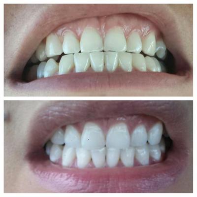 Crest 3d White Whitestrips Gentle Routine Teeth Whitening Kit 28