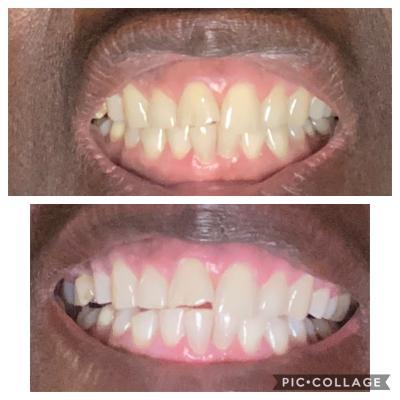 Crest Pro Health Gum Detoxify Whitening Two Step Toothpaste