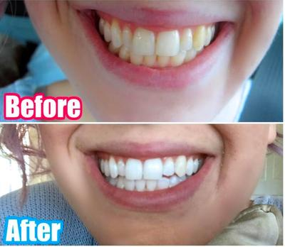 Active Wow Teeth Whitening Charcoal Powder Natural Teeth Whitening